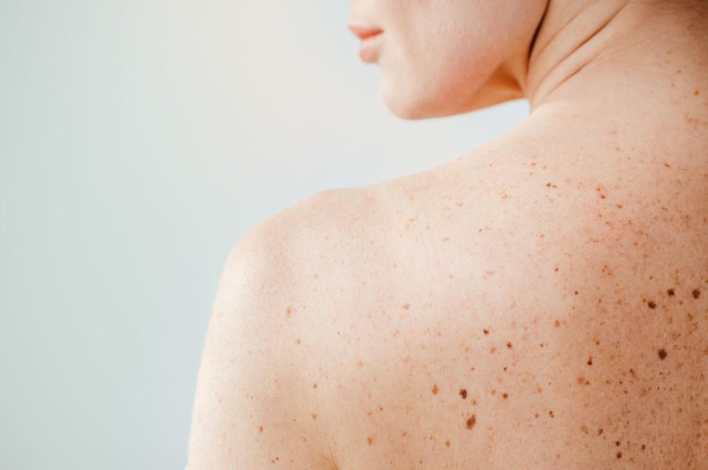 Vorsorge ist Fürsorge: Check-up Paket im Dermatologikum